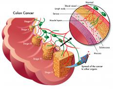 Colon cancer is a possible for a sigmoid resection.