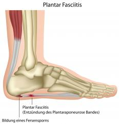 Some people with plantar fasciitis find barefoot shoes difficult to wear.