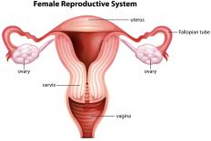 Growths that appear in the neck of a woman's uterus are referred to as endocervical polyps.