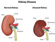 Diagnosis of kidney disease at an earlier stage can mean a longer life expectancy.