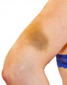 A contusion is more commonly known as a bruise.