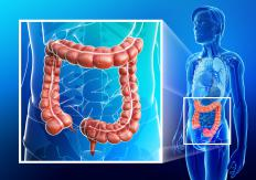A functional defect of the large intestine is referred to as colonic ileus.