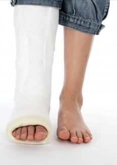 A person with a fractured ankle.
