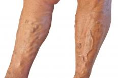 Varicose veins can look red, blue, or purple, and bulge out of the skin.