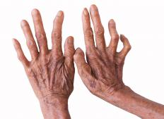 A progressive numbness of the hands is a secondary symptom of tuberculoid leprosy.