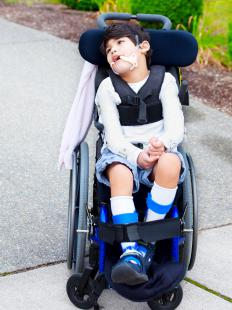 Many people with spastic diplegic cerebral palsy can use a wheelchair.