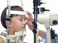 Treatment of anisometropia depends on whether or not it is severe.