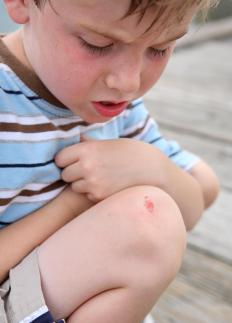 Nupercainal ointment may be used to treat cuts and scrapes.