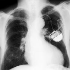A pacemaker permanently monitors the heart's rhythm in both the atria and ventricles.