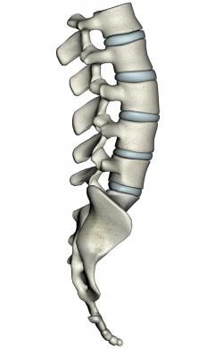 The ability of discs in the spine to absorb water is diminished among people with degenerative disc disease.