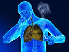 Pleural build up may occur as a result of lung cancer.