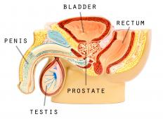 A prostate exam is often necessary to determine treatment for male menopause.