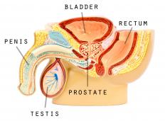 Sores, warts or other blemishes that occur on the male or female genitalia may be referred to as genital lesions.