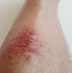 A red rash at the area around the bite could be a sign of an allergic reation to fleas.