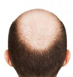 A man with male pattern baldness.