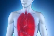 Bronchial pneumonia severely affects the lungs.