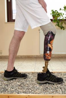 A modern day prothesis is light weight and designed for functionality.