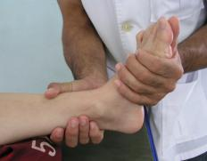 Physical therapy will be necessary if an injury forces the removal of the accessory navicular bone.