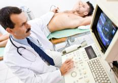 An ultrasound may be performed before, during and after an ablation procedure in order to monitor the patient.