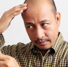 Follicular transplants are often used to treat baldness.