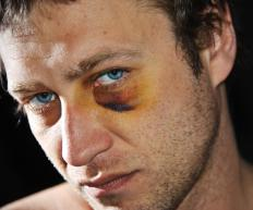 A bruised eye is often accompanied by a great deal of pain, so some kind of pain-relieving drug may be necessary.