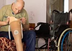 Prosthetic limbs allow amputees improved mobility and independence.