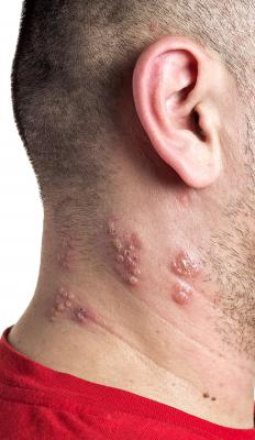 Shingles is usually identified by blisters and a rash appearing on one side of the torso or face area.