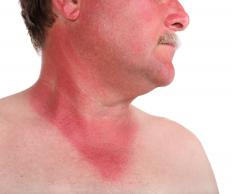 Vitamin D ointment can help with a windburn.