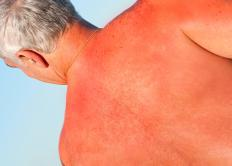 Overexposure to germicidal bulbs over a long period of time can lead to sunburn.