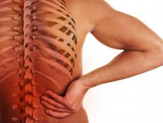 Ankylosis involves chronic inflammation of the spine.