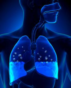 Fluid accumulation in the lungs can be a cause of chronic hypoxia.