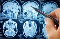 Brain cancer can arise out of glial cell disorders.