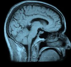 A brain scan will likely be used to check for choroid plexus papilloma.