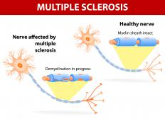 Multiple sclerosis is a common cause of acute demyelination.