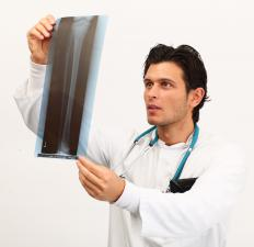 An orthopedic surgeon looking at the X-ray of a patient with joint problems.