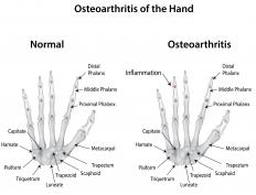 Erosive arthritis is a painful version of osteoarthritis that mainly affects the hands.