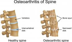An illustration of a healthy spine and one with spinal osteoarthritis, showing where bone spurs can develop.
