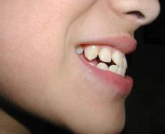 An overbite is considered a class 2 malocclusion.