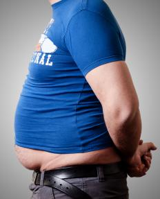 Overweight individuals may be prone to yeast infections.