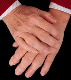 Arthritis is a common cause of swelling fingers.