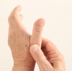 Pain-relieving medicines or injections can help relieve arthritis hand pain.