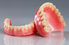 People may develop spotty gums after receiving dental treatment, such as dentures.
