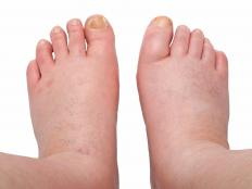 Peripheral edema commonly affects the legs and feet.