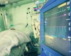 ECG machines utilize isolation amplifiers to protect the patient from electric shock.