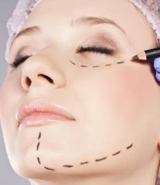 Women often have cosmetic plastic surgery in the eye, nose and chin areas.