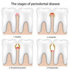 The stages of periodontal disease, which can cause loose teeth.