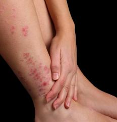 A petechial rash is made up of small red bumps on the skin, caused by bleeding from skin capillaries.