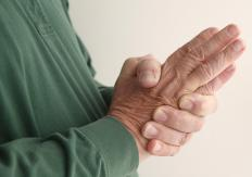 Shared symptoms of fibromyalgia and neuropathy include pain or tingling in the fingers and hands.