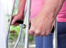 An individual may require crutches following hammer toe surgery.