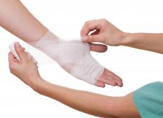 A chemical burn should be covered with a dry, sterile dressing after it is washed and dry.